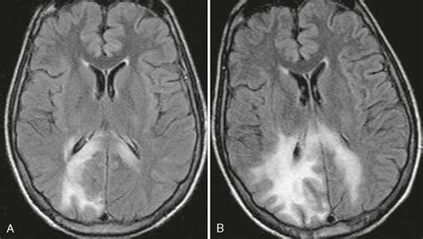 Other Infections of the Brain | Radiology Key