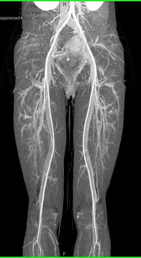 Normal CTA with Runoff with Normal Vasculature - Vascular
