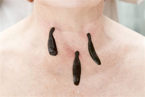 Infections from Leech Therapy - Sermo